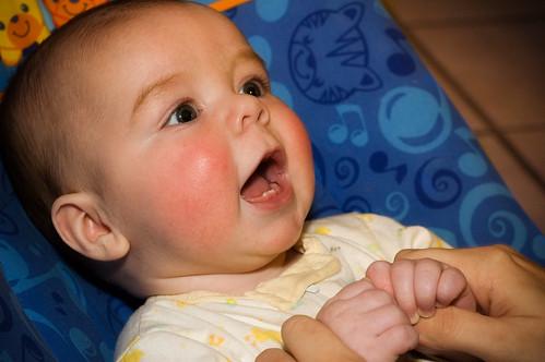 teething rash picture. Baby Teething Tips