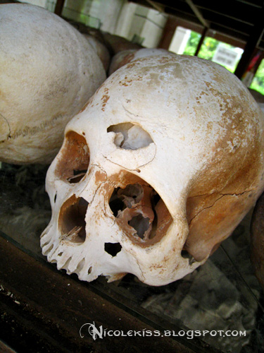 hole in skull