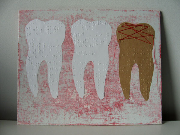 mend:teeth