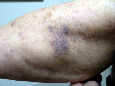 CRC-bruises.jpg