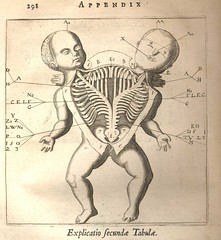 De Monstris of Fortunio Liceti (Kintzertorium) Tags: netherlands amsterdam engraving monsters infants deformed 1665 anatomical conjured demonstris fortunioliceti kintzertorium andreasfrisius