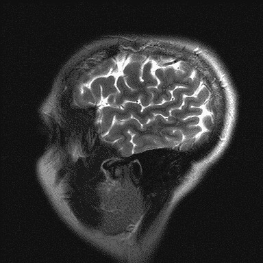 mri brain scan. MRI brain scan, saggital view,
