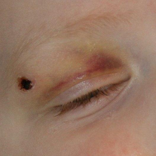 cal's eye 3