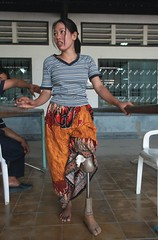 A woman attempts to walk with an artificial leg as part of her physical therapy (World Bank Photo Collection) Tags: woman asia cambodia factory artificial health limbs handicap worldbank prosthesis amputee disability eastasia disable