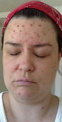 Chicken Pox Day 7 (kerryj.com) Tags: adult chickenpox disease twitter365