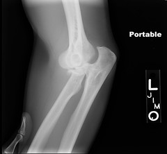 Broken Ulna Dislocated Elbow http://foter.com/Ulna/