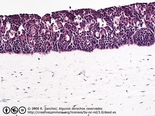Organotypics HaCaTs