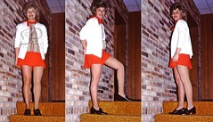 Judy - Otto Bock Endo Prosthesis Model / above knee amputee (Photographer Al Pike) Tags: prosthesis amputee prosthetics