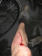 Wet tram tracks and bike tyres do not mix well