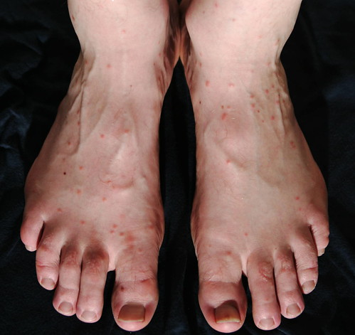 What causes red spots on the tops of feet? | Reference.com