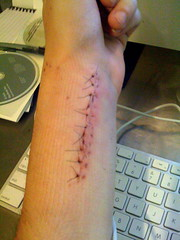 Stiches after surgery (WIZARDISHUNGRY) Tags: hand injury surgery stitches wrist fracture radius