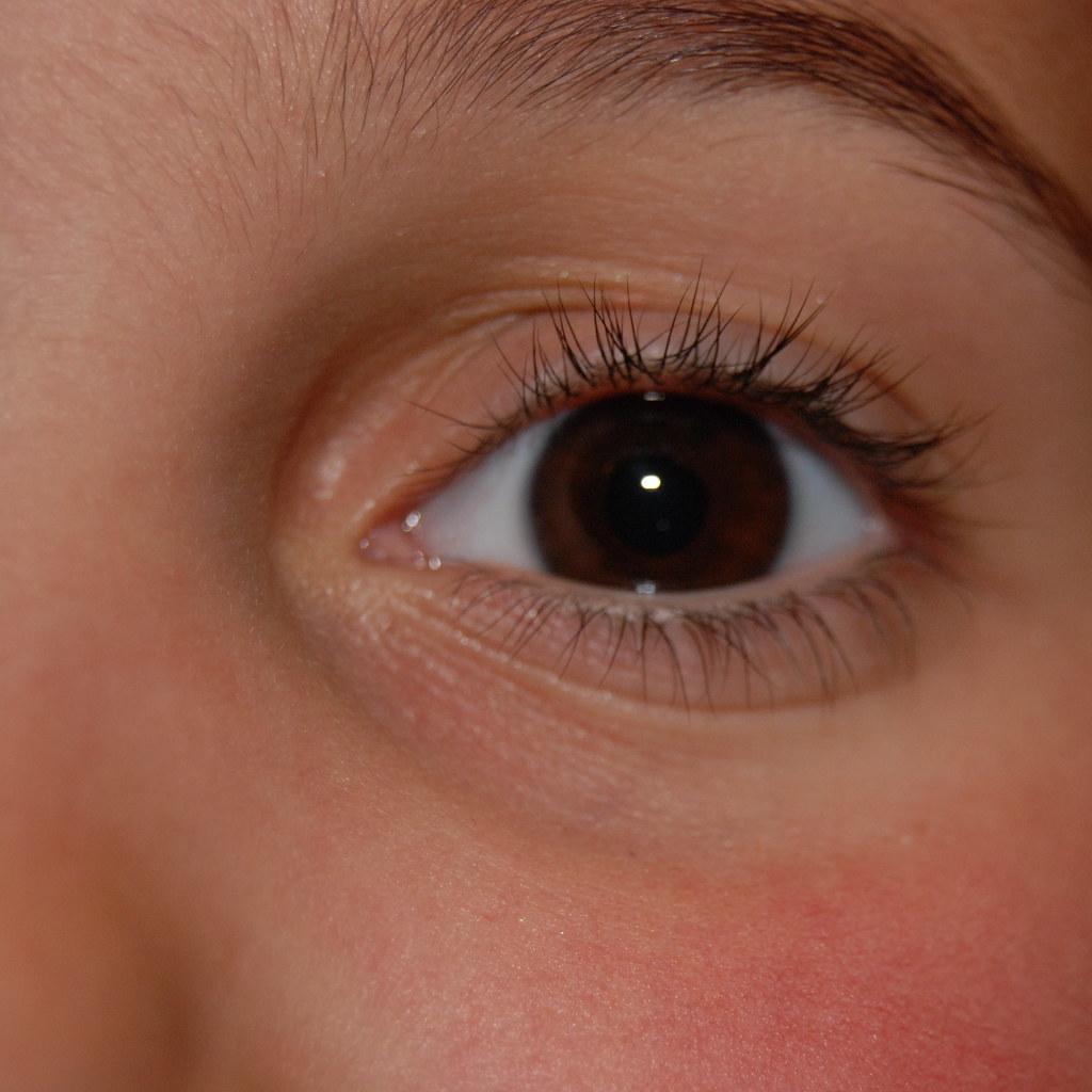 Emma's eye