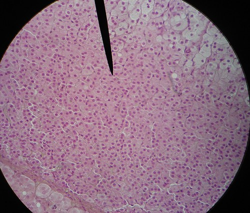 adrenal gland-zona reticularis | Flickr - Photo Sharing!