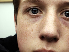 (Brendan½) Tags: portrait eye face mouth nose head skylight eyebrow freckles eyelash zit hurley pimple