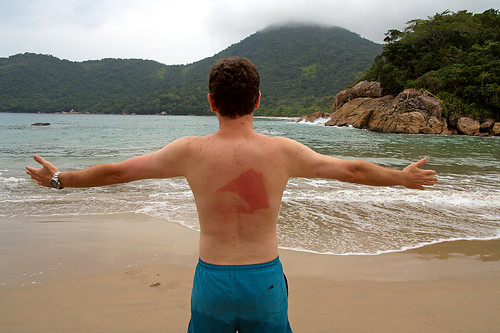 Sunburn Poser