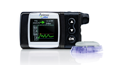 Animas Vibe with the Dexcom G4:  Want.