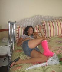 pSlc Korbbett Flipflop Baer (chilltown1) Tags: broken toes cast ankle