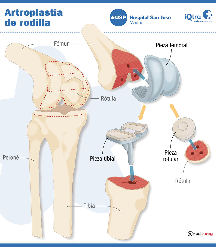 Artroplastia de rodilla del Rey de España