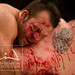 Kenny Johnson, bleeding onto Lucas Gamaza