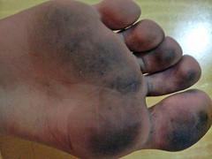 Dirty feet (carlosilva) Tags: feet toes toe barefoot barefeet ps soles p descalos pezinhos solas pezinho pzinho dirtyfeet descala descalo pssujos psdescalos