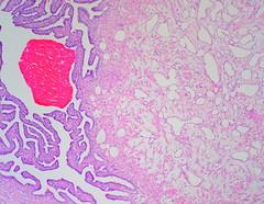 Adenomatoid Tumor of Fallopian Tube.