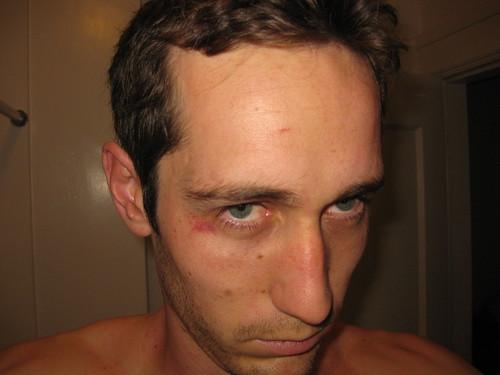 Krav L4 Test Bruises