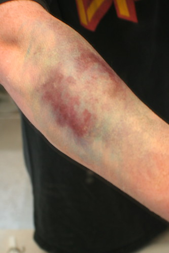 Arm bruise and Vein bruise - Symptom.