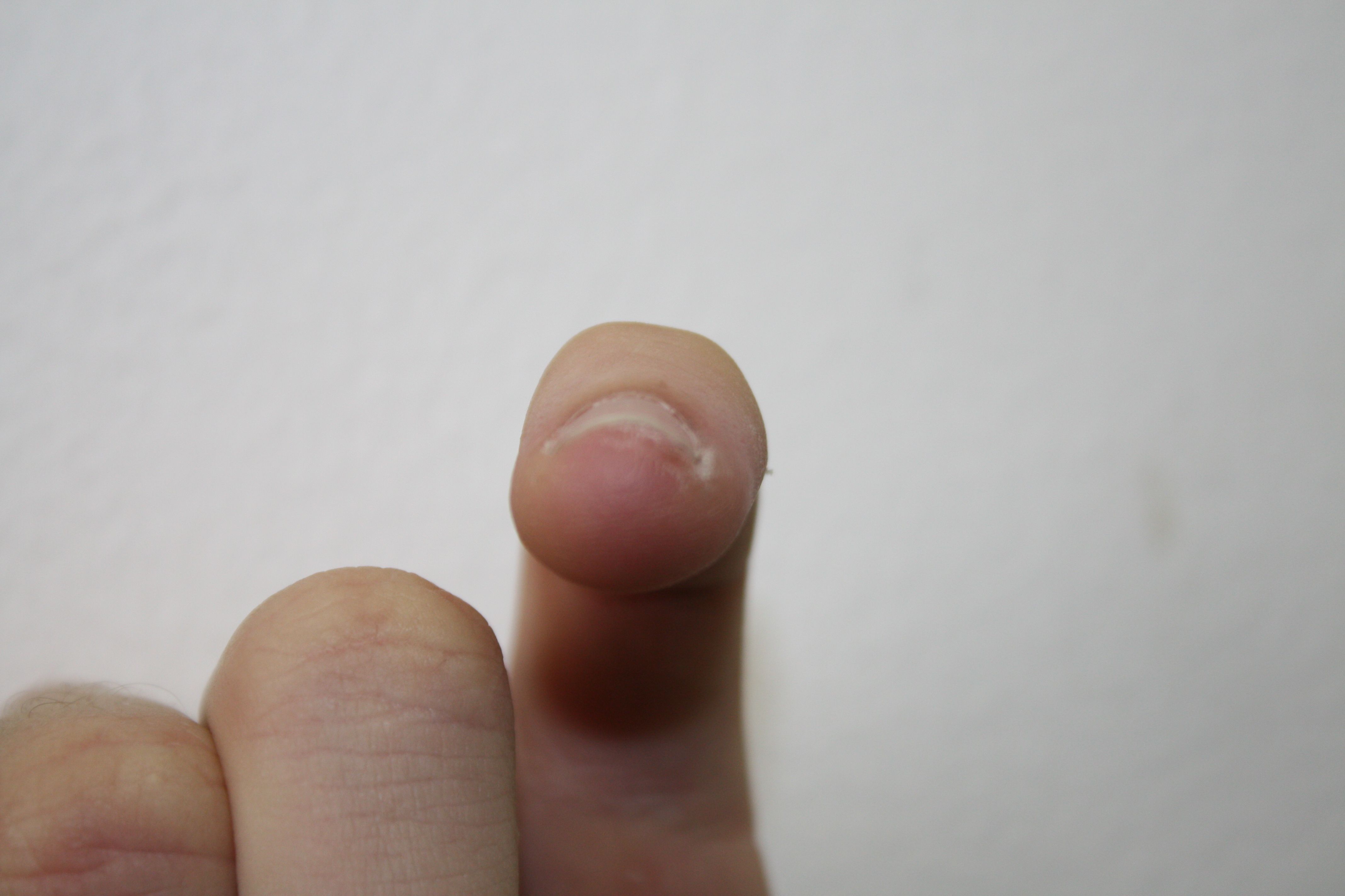Fingertip pain and sensitivity - Undiagnosed Symptoms - MedHelp