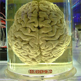 cerebro humano en frasco