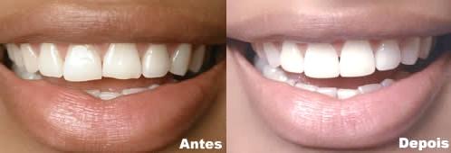 Dentes antes depois
