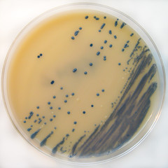 M.R.S.A. Staphylococcus aureus on Brilliance M...