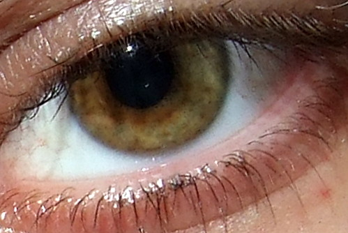 My Nasty Eyeball