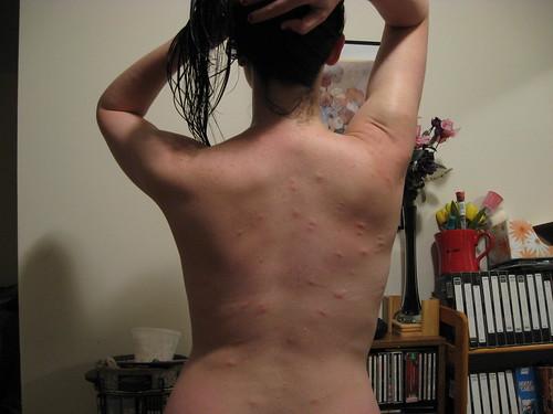 Mosquito Attack!!!