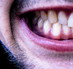 Show me some gums