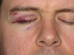 Bradley's black eye