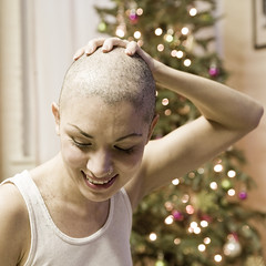 examination (helveticaneue) Tags: woman beauty tanya head january bald shave pino 2009 trich tanyadakin peapodluv tricotillomania newyearfreshstart