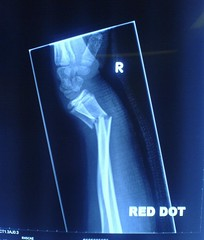 I Think It Might Be Broken (Colleysmill) Tags: broken xray wrist