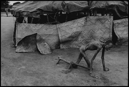James Nachtwey: Famine victim in a feeding center