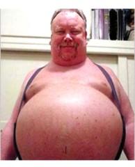 Фото 1 - Большой живот - это плохо