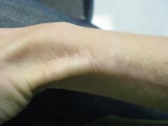 Scar (m kasahara) Tags: me arm wrist scar