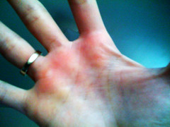 Raw hands after Trapeze/Aerial Silk class