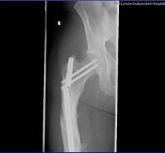 The thigh bone's connected to the.....wtf bone! (Twm) Tags: screws pin nail xray bone hip femur titanium brokenleg radiography brokenbone balljoint calciumphosphate orthopaedicimplant