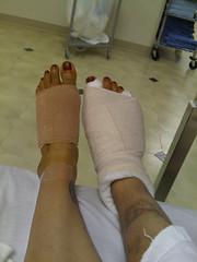 Bandages (.imelda) Tags: foot surgery removal bandages imelda bunion