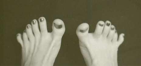 mutant_six_toes2