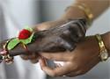 Lali nació en marzo en Saini Sunpura, al norte de la India con duplicación craneofacial (Reuters)