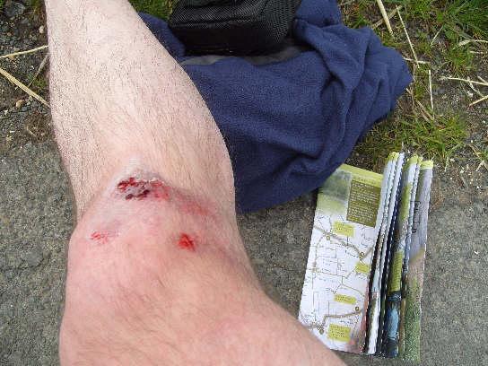grazed knee