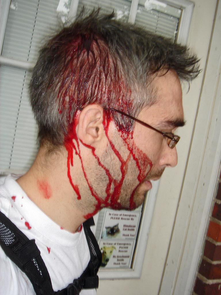 blood in hair