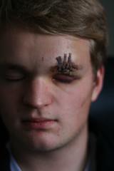 Wounded. (HuldaHlm) Tags: boy fall nose accident handsome wound blackeye stiches