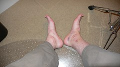 ankle_6days (Taylor Sherman) Tags: ouch bruise ankle boogieboard