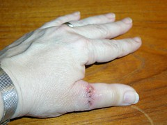 Day 4 of the hamster bite on my left hand